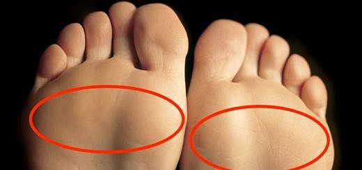 Best Insoles for Ball of Foot Pain Metatarsalgia