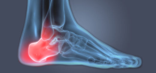 Heel Pain X Ray Featured Image
